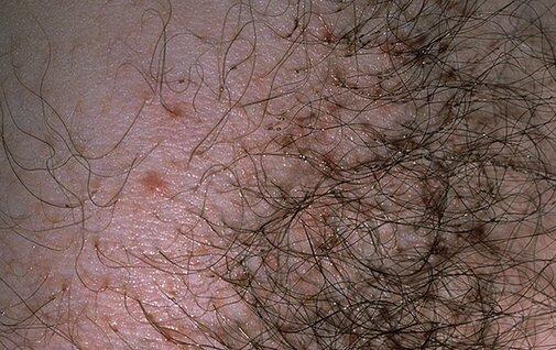 лобковые вши фото симптомы лечение