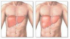 Симптомы гепатомегалии печени заключаются в увеличении размеров данного органа